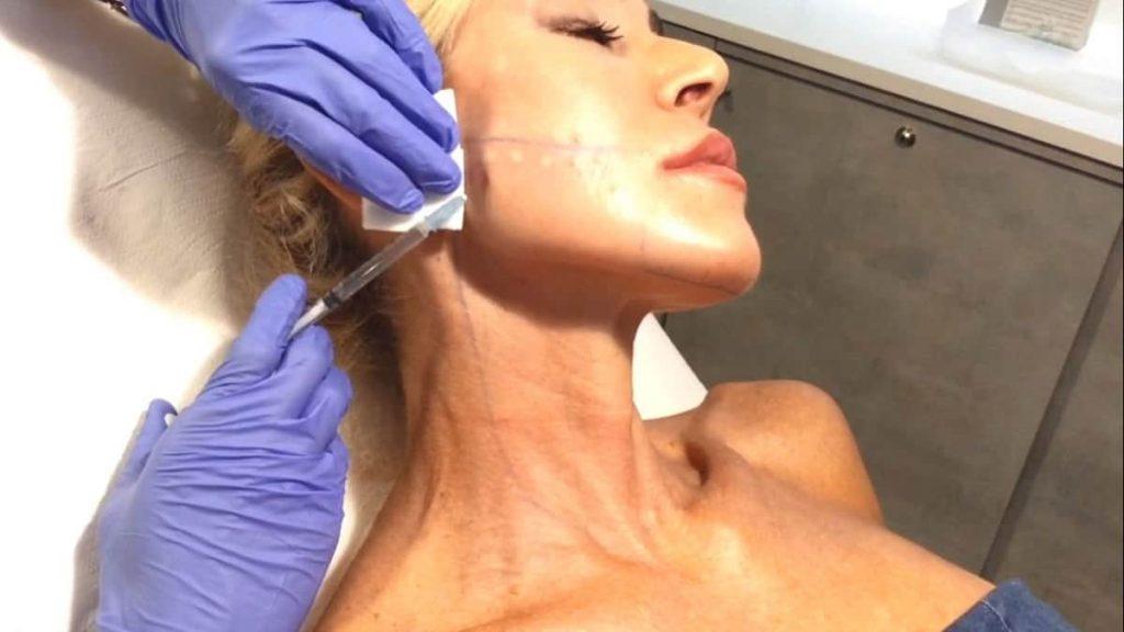 Biostimolazione con skin colin