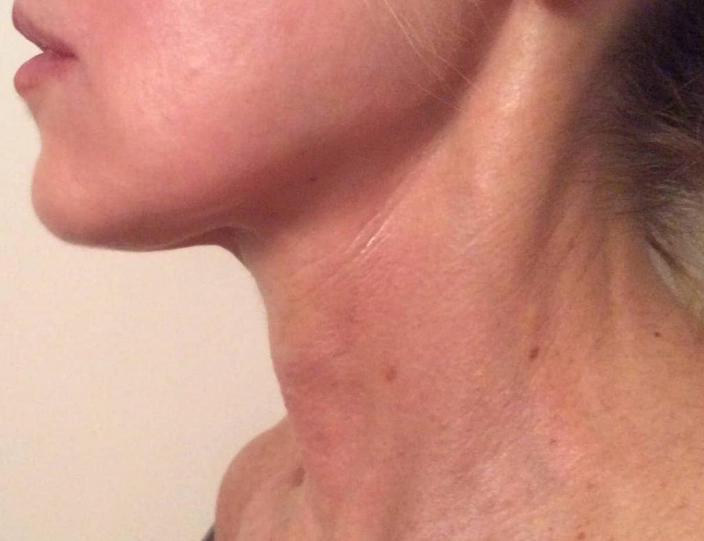 Trattamenti estetici per la bellezza del collo