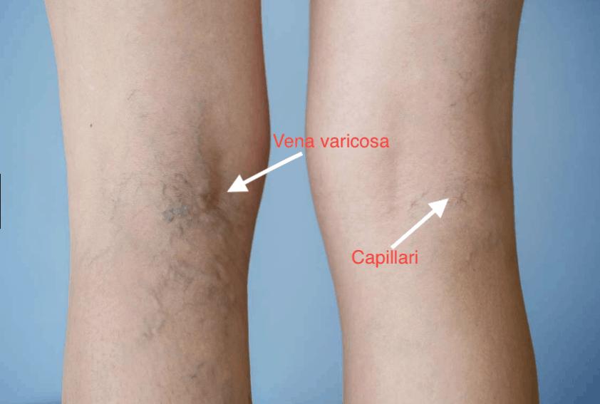 come eliminare capillari alle gambe