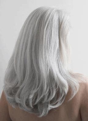 "In un articolo pubblicato su JAMA Dermatology a Novembre 2017 ""Hair  Repigmentation During Immunotherapy Treatment With an Anti-Programmed Cell  Death 1 and ... 0182220c4ef8"